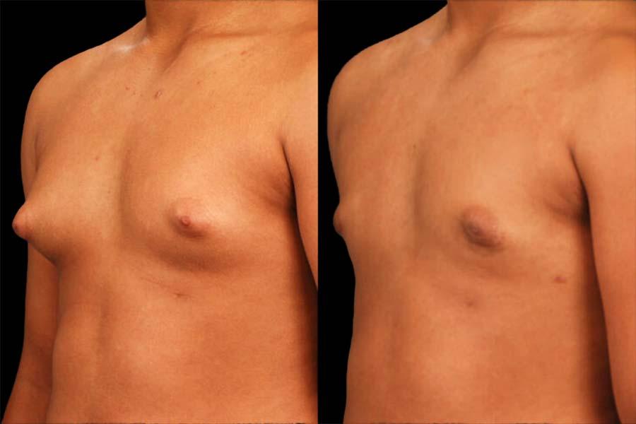 Cirugía Pectoral The Cliniq