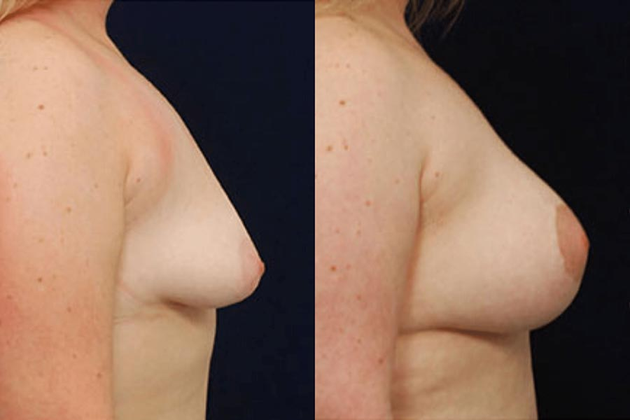 Cirugía de las mamas The Cliniq