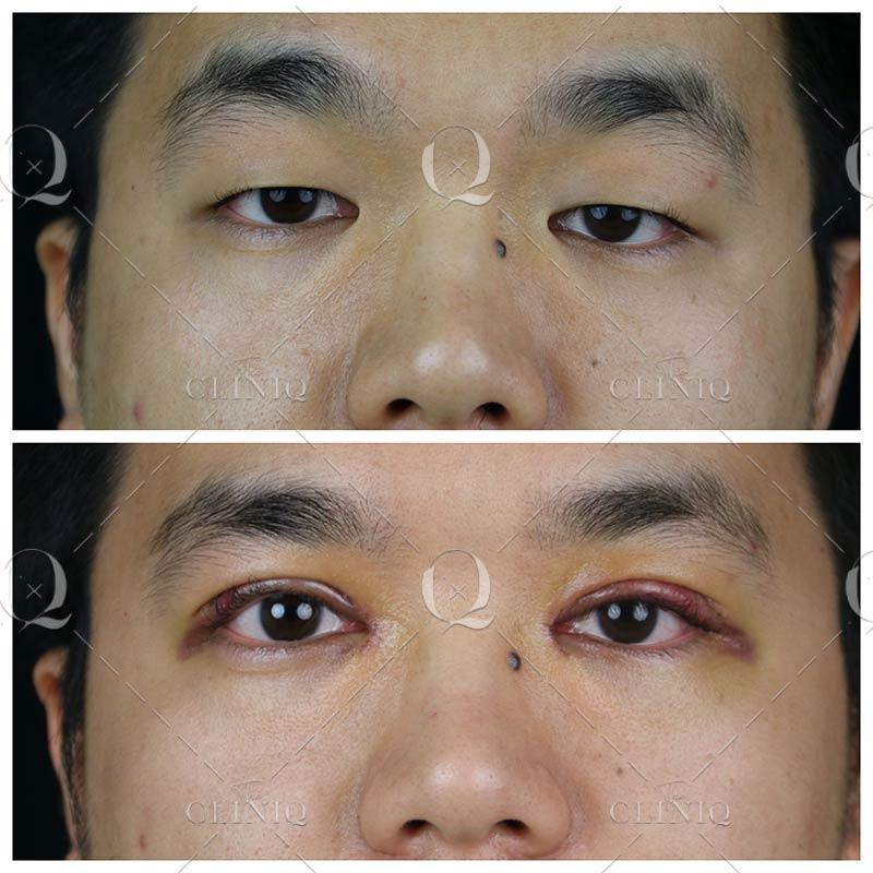 Antes y después blefaroplastia asiáticos.