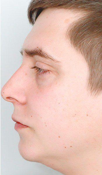 Rinoplastia Con Cirugía The Cliniq